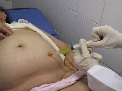Симптоми, код за мкб-10 і лікування асциту черевної порожнини при онокологіі