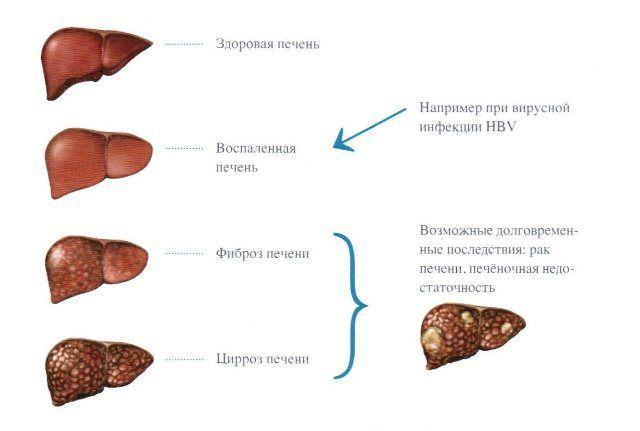 Специфіка прояву гепатиту в у жінок