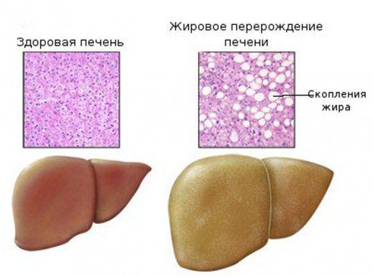Запалення печінки: лікування, симптоми